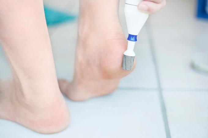 Esfoliador elétrico para os pés: por que usar?