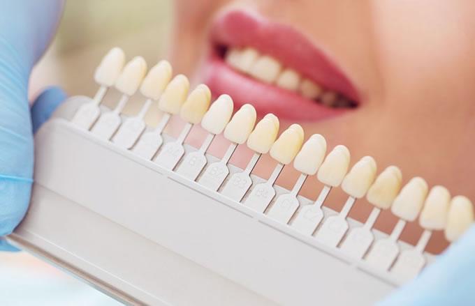 Clareamento Dental Quais Sao Os Tipos Saiba Mais